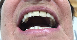 dental implants review